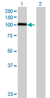 Western blot - RFX3 antibody (ab67683)