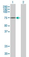 Western blot - ZNF433 antibody (ab67685)