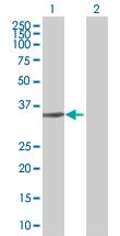 Western blot - RBJ antibody (ab67702)