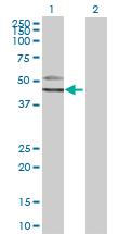 Western blot - GATM antibody (ab67713)