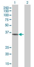 Western blot - CAMLG antibody (ab67714)