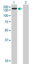 Western blot - PHKA2 antibody (ab67716)
