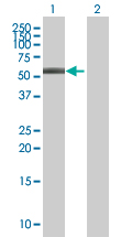 Western blot - ABLIM3 antibody (ab67721)