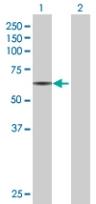 Western blot - RAP1GDS1 antibody (ab67722)