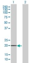 Western blot - DUX3 antibody (ab67723)