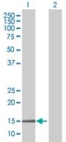 Western blot - BATF3 antibody (ab67736)
