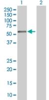 Western blot - APBB3 antibody (ab67741)