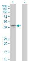 Western blot - DIXDC1 antibody (ab67763)