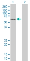 Western blot - HAPLN1 antibody (ab67767)