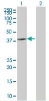 Western blot - ASB6 antibody (ab67768)