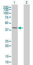 Western blot - LRRC23 antibody (ab67769)