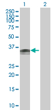 Western blot - Wnt7b antibody (ab67771)