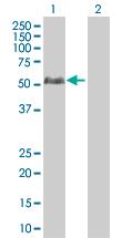 Western blot - STAC3 antibody (ab67773)