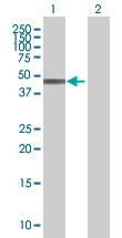 Western blot - Tropomodulin 4 antibody (ab67776)