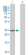 Western blot - DCTN6 antibody (ab67777)
