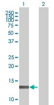 Western blot - Profilin 4 antibody (ab67778)