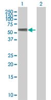 Western blot - TEKT3 antibody (ab67779)
