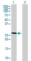 Western blot - TCEAL1 antibody (ab67781)