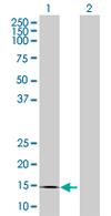 Western blot - CREBL2 antibody (ab67782)