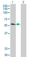 Western blot - TRIM31 antibody (ab67785)