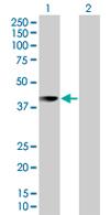 Western blot - UBLCP1 antibody (ab67786)