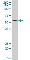 Western blot - EPHX2 antibody (ab67788)