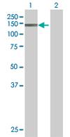 Western blot - KIF16B antibody (ab67790)