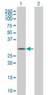 Western blot - LOC440456  antibody (ab67792)