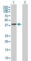 Western blot - ZFP28 antibody (ab67799)