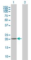Western blot - TRFP / MED20 antibody (ab67800)