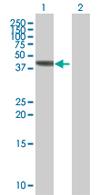 Western blot - VPS36 antibody (ab67801)