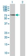 Western blot - ZNF34 antibody (ab67802)