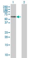 Western blot - SUHW1 antibody (ab67804)