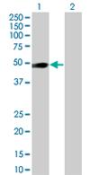 Western blot - OSMR antibody (ab67805)