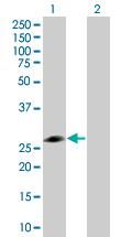 Western blot - RPE antibody (ab67808)