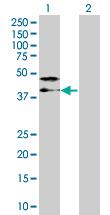Western blot - TRA2A antibody (ab67809)