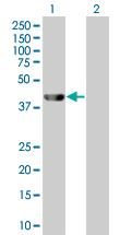 Western blot - Anti-Arglu1 antibody (ab67810)