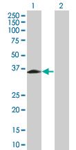 Western blot - RHOXF2 antibody (ab67811)