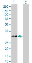 Western blot - SNRPN antibody (ab67813)