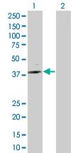 Western blot - ST6GALNAC6 antibody (ab67814)