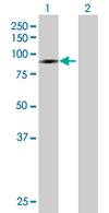 Western blot - DIP13B antibody (ab67816)