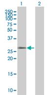 Western blot - OR12D3 antibody (ab67818)