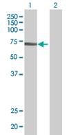 Western blot - SAMHD1 antibody (ab67820)