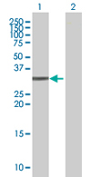 Western blot - PLCXD3 antibody (ab67821)