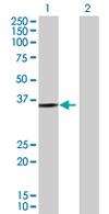 Western blot - Protein kinase-like protein SgK493 antibody (ab67825)