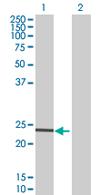 Western blot - USP53 antibody (ab67826)