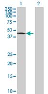 Western blot - RCN2 antibody (ab67827)
