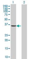 Western blot - CDK10 antibody (ab67828)