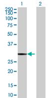 Western blot - DUSP27 antibody (ab67829)