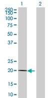 Western blot - MDP1 antibody (ab67830)